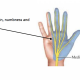 Carpal tunnel syndrome hand and forearm pain physiotherapy central coast tuggerah